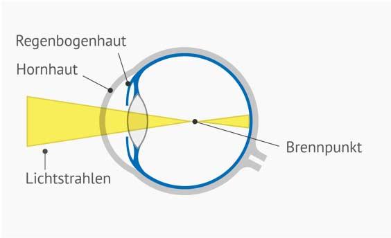 Auge Hornhautverkrümmung Querschnitt beschriftet - Der Brennpunkt ist vor der Netzhaut. Dies fürht zum unscharfen Sehen