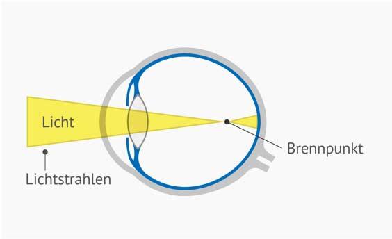 Querschnitt Auge bei Kurzsichtigkeit. Der Brennpunkt ist vor der Netzhaut, weshalb das Bild unscharf auf die Netzhaut trifft