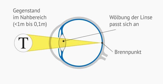 Auge bei Alterssichtigkeit - Querschnitt - Die Wölbung der Linse passt sich an,