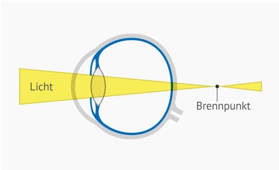 Auge bei Weitsichtigkeit - Querschnitt beschriftet. Brennpunkt ist hinter der Netzhaut. Dies führt zum unscharfen Sehen