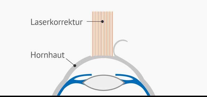 Augenlasern Femto-LASIK Laserkorrektur - Querschnitt des Auges