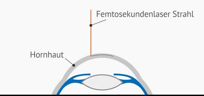 Augenlasern Femto LASIK Femtosekundenlaser Strahl präpariert Hornhaut