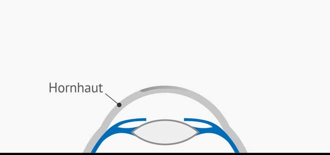 der Flap wird wieder in seine Ursprungsposition zurückgeklappt und verschließt die Oberfläche des Auges