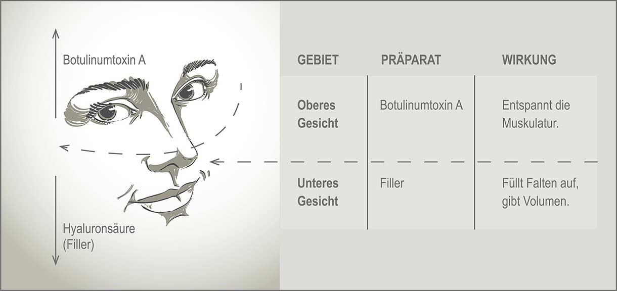 Botox-Grafik für Behandlungen im Augenzentrum Eckert