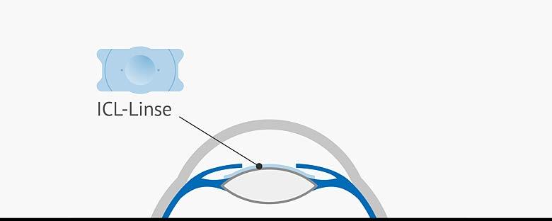 Positionierung der ICL-Linse