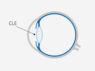 Position der Multifokallinse
