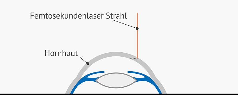 Grafik Präparierung der Hornhaut
