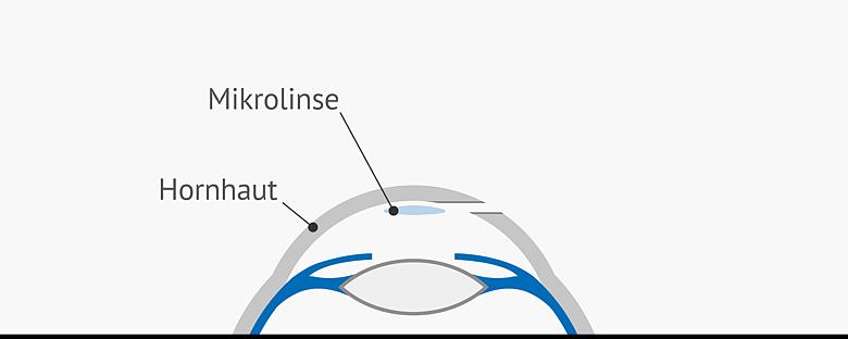 Grafik Positionierung der Mikrolinse